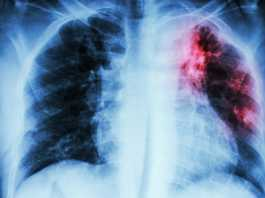 FDA approves new drug for treatment-resistant tuberculosis