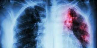 Fast Track designation for Shire's chronic lung disease treatment
