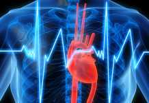 Amgen & DCRI to evaluate impact of PCSK9 inhibitors on cardiovascular outcomes
