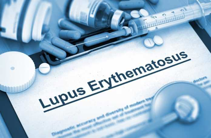 Anifrolumab meets primary endpoint in systemic lupus erythematosus