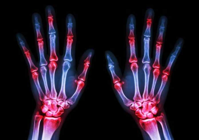 GSK initiates phase III start for otilimab in rheumatoid arthritis