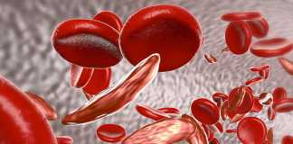 Novartis' investigational sickle cell medicine filed by FDA